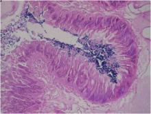 Bacillus intestin chenille