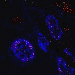 Elements of titanium (red dots) in the immune cells of the rat small intestine.