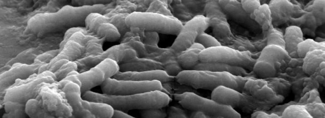 illustration Un probiotique désarmé pour mieux guérir