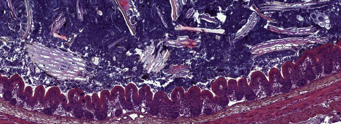 illustration Les métabolites produits par le microbiote intestinal : une nouvelle cible pour faciliter la transition alimentaire du sevrage