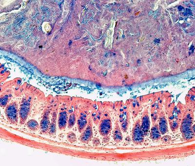 Coupe de la muqueuse intestinale
