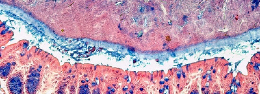illustration Le dioxyde de titane ne fragilise pas le mucus intestinal chez l'animal